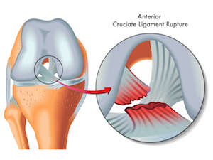 ACL rupture ACL reconstruction dr mike smith dr chien-wen liew minimally invasive single hamstring technique adelaide south australia