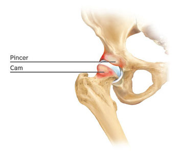 cam pincer femoroacetabular impingement adelaide dr chien-wen liew orthopaedic surgeon adelaide arthroscopy hip arthroscopic minimally invasive best photo