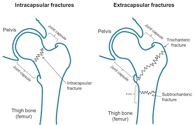 extracapsular fractures adelaide hip trauma surgery dr mike smith dr chien-wen liew orthopaedics 360 robotics