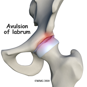 Hip Labral Tears