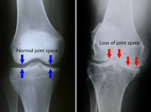 knee arthritis adelaide dr mike smith patient specific technology total knee replacement makoplasty mako robotics dr chien-wen liew
