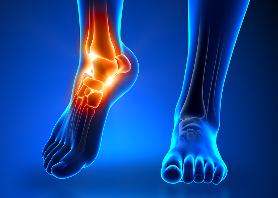 Pain following Ankle Sprain