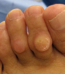 Mike smith adelaide orthopaedic surgeon bunion surgery lesser toe deformity bent toes best photo