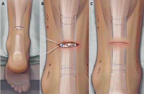 achilles anatomy best image achilles rupture achilles surgery repair ...