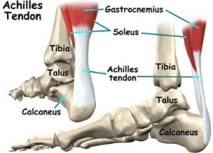 achilles tendon rupture anatomy mike smith orthopaedic surgeon adelaide