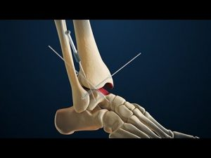 ankle arthroscopy ankle pain foot and ankle surgeon adelaide best image
