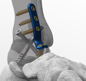 ankle fusion ankle arthritis ankle pain mike smith adelaide orthopaedic surgeon best image