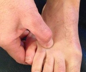 best clinical test neuroma treatment adelaide orthopaedic surgeon mike smith foot surgeon