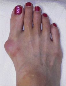 bunion treatment bunion surgery adelide orthopaedic surgeon mike smith best bunion photo