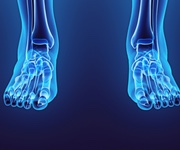 condition feet smith bunion surgery minimally invasive best photo hallux valgus bunionette mortons neuroma adelaide south australia surgery