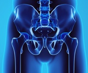 condition hip total hip replacement hip arthritis hip labral tear hip osteoarthritis total hip replacement adelaide best diagram