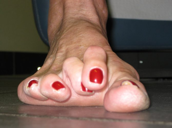 Lesser Toe Deformity