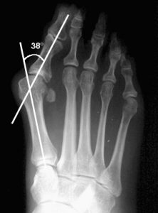 dr mike smith foot surgeon adelaide bunion treatment bunion surgery xray