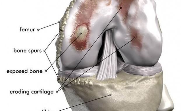 Knee Arthritis Orthopaedics 360