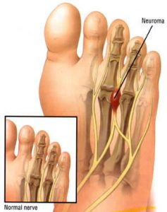 mike smith adelaide orthopaedic surgeon foot surgery hammer toe keyhole neuroma surgery