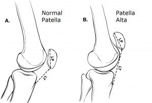 patella dislocation treatment mike smith knee surgeon patella alta