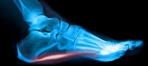 plantar fasciitis smaller best photo mike smith orthopaedic surgeon adelaide foot