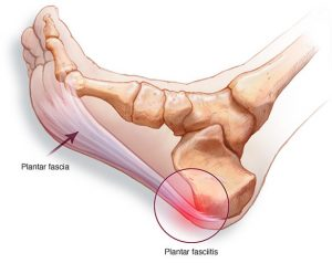 plantar fasciitis treatment adelaide dr mike smith adelaide orthopaedic surgeon best image