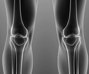 Procedures total knee replacement ACL reconstruction knee arthroscopy meniscus tear knee pain
