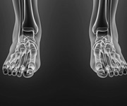 procedures no cuts feet smith key hole bunion surgery minimally invasive best photo hallux valgus bunionette mortons neuroma adelaide south australia surgery