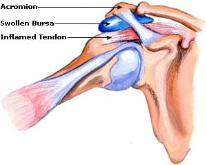 shoulder bursitis adelaide keyhole shoulder arthroscopic surgery south australia orthopaedic surgeon dr chien-wen liew