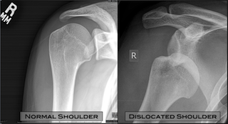 shoulder dislocation surgery adelaide dr chien-wen liew shoulder minimally invasive best xray
