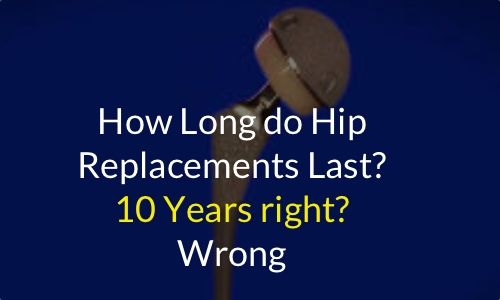 How Long do Total Hip Replacements Last