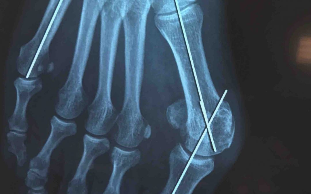How Common are bunions and what causes them?