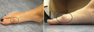 toe spur from arthritis mike smith