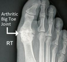mike smith toe arthritis management