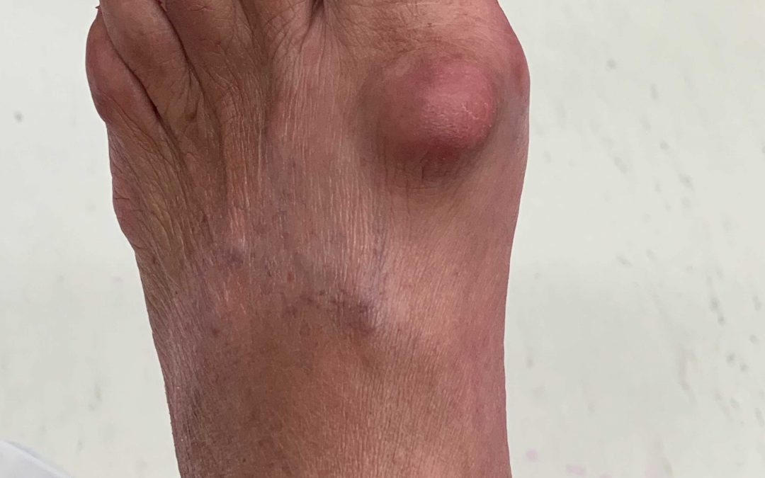Can you have a bunion deformity and still have a straight toe?